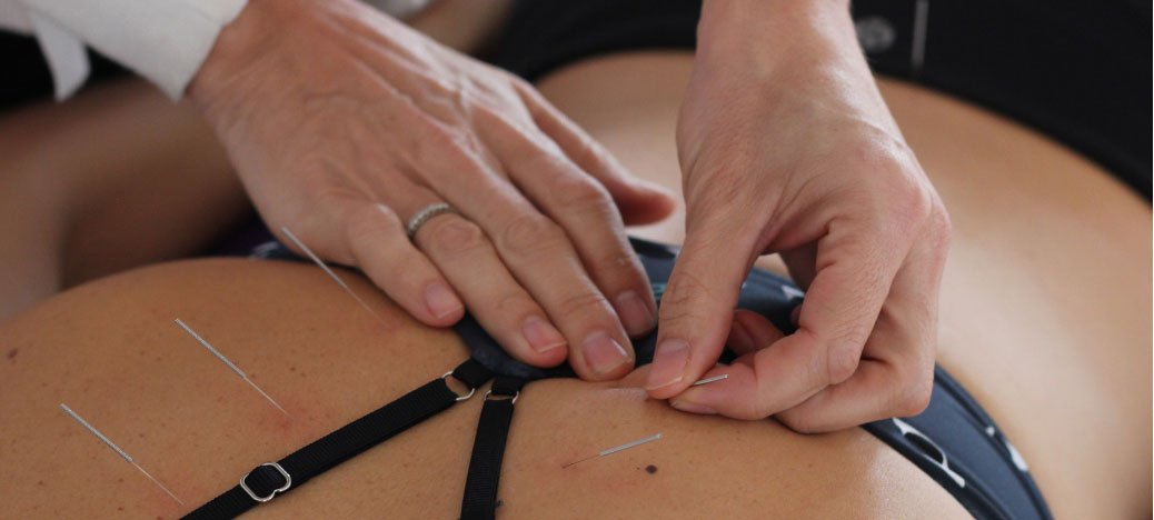 what is acupuncture | acupuncture treatment